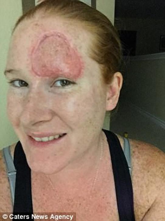 Các bác sĩ đã phẫu thuật cấy ghép da từ đùi cho Greenway, tuy nhiên vùng trán của cô vẫn có thể nhìn rõ vết sẹo khá lớn. Ảnh: Caters News Agency.