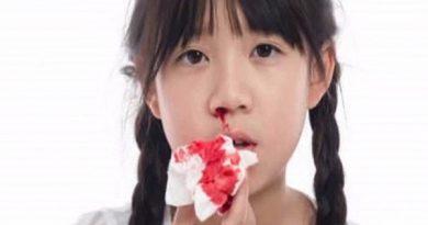 nguyên nhân chảy máu cam