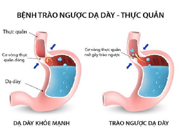 Trào ngược dạ dày thực quản là một căn bệnh rất phổ biến hiện nay và những người mắc bệnh này ngày càng tăng.