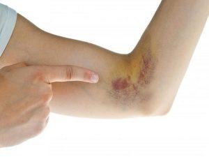 Dấu hiệu nhận biết khi mắc bệnh xuất huyết giảm tiểu cầu