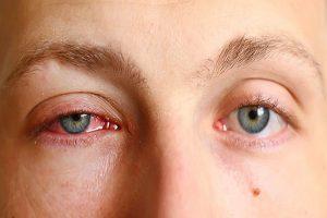 Nguyên nhân thường gặp ở bệnh đau mắt đỏ