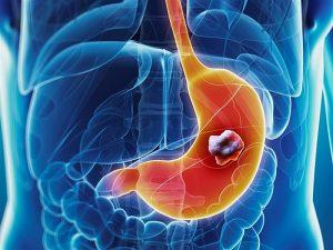 Tiến triển của bệnh ung thư dạ dày