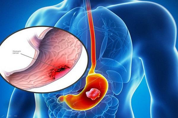 Ung thư dạ dày là căn bệnh có thể phát triển ở bất cứ phần nào của dạ dày