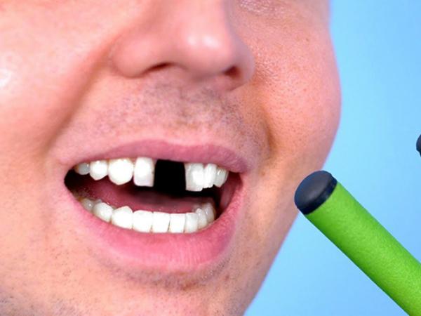 Nằm mơ thấy gãy răng báo hiệu điềm tốt hay xấu?